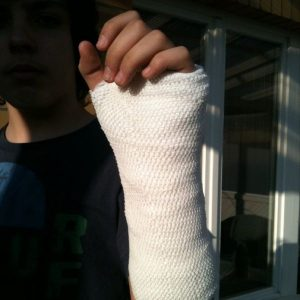Orthopedic_cast_Vincent's_Gips_Arm
