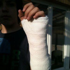 Orthopedic_cast_Vincent's_Gips_Arm