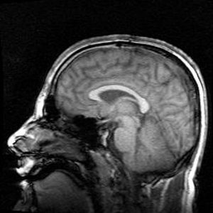 600px-Mri_brain_side_view